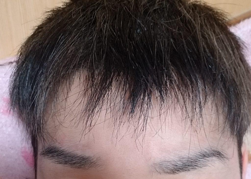 若ハゲ 前髪