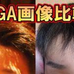 初期の若ハゲ薄毛画像で治療改善を確認した結果…【頭頂生え際】