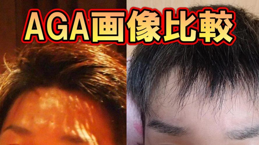 AGA画像比較