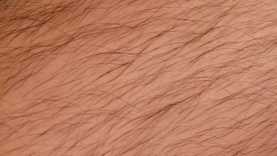 俺がAGA治療薬の副作用で全身毛だらけになっている件。