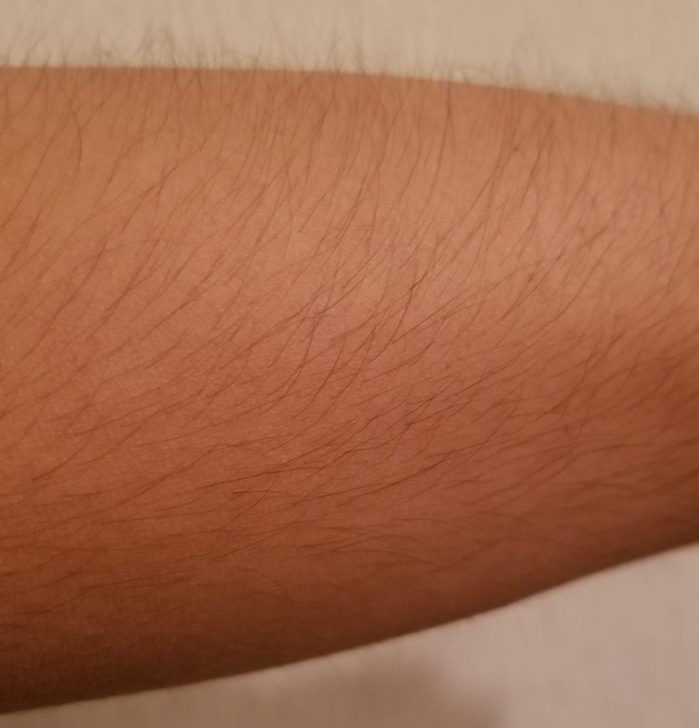AGA副作用 多毛症