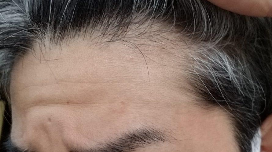 AGA治療はいつから始めれば効果的に薄毛改善できるのか?