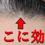 【強力】デュタステリドに切り替えて生え際の薄毛を克服できるのか検証【AGA治療薬】