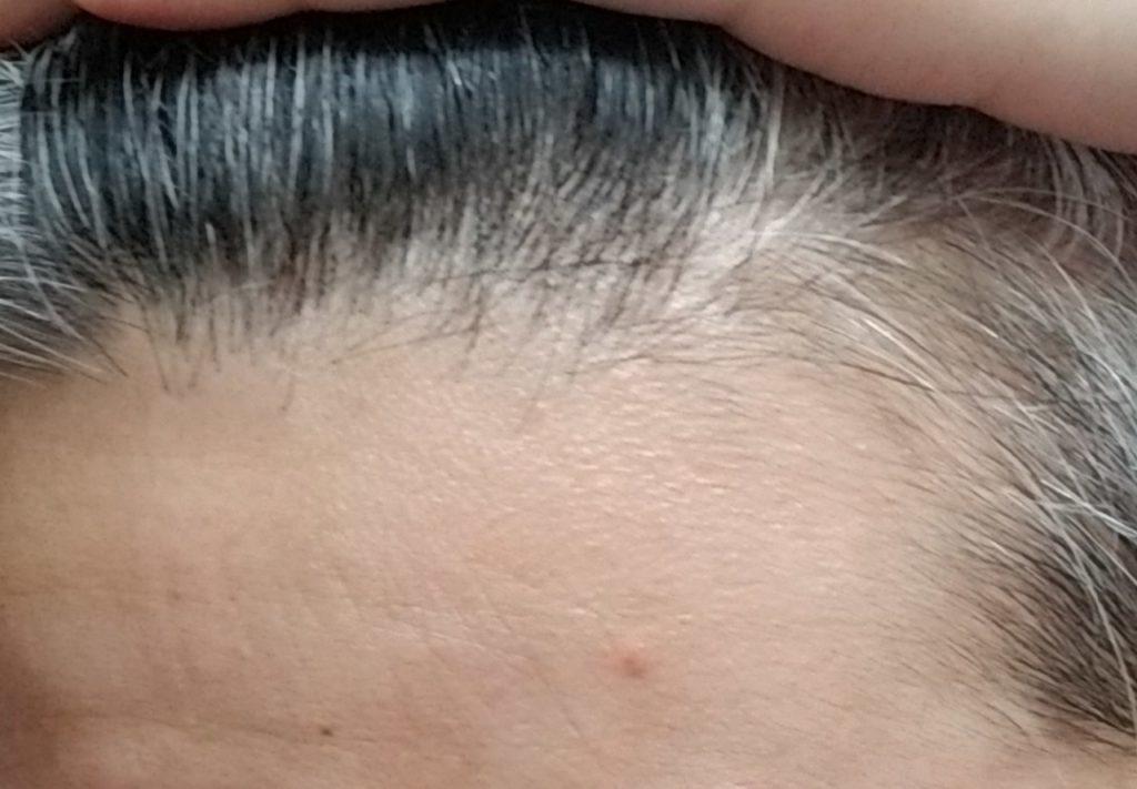 生え際薄毛