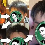 薄毛の初期症状を画像と俺の体験談で説明します!【若ハゲ・前髪】
