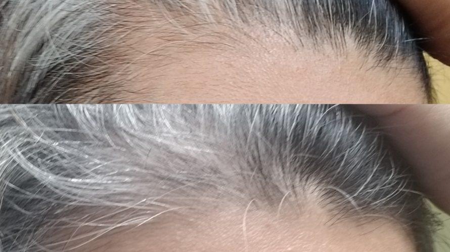 薄毛の進行が止まった?画像比較でさらなる対策を練りまくる!