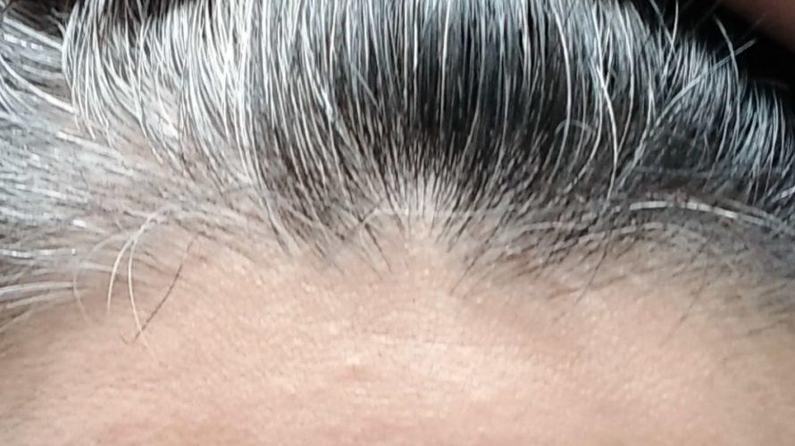 抜け毛の本数