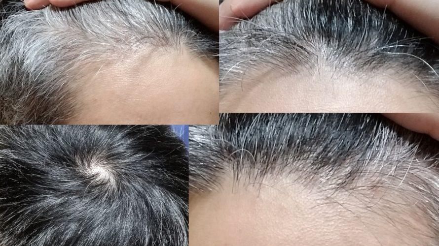 【576日目】1ヵ月放置しハゲ治療の効果や変化を画像比較する【薄毛克服ブログ】