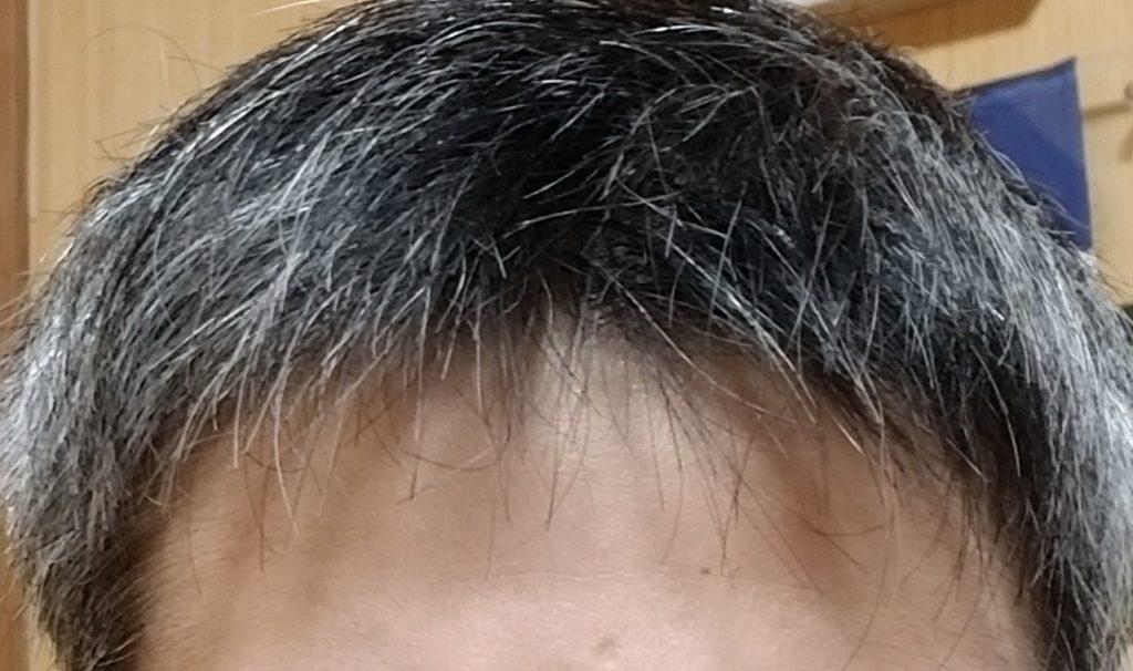 生え際 薄毛