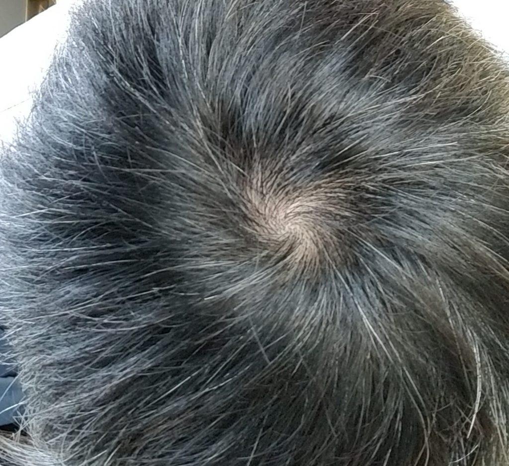 AGA治療頭頂部