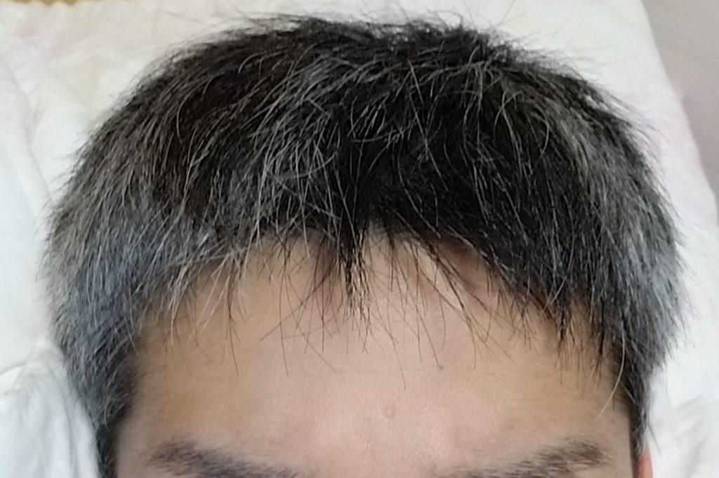 薄毛 短髪
