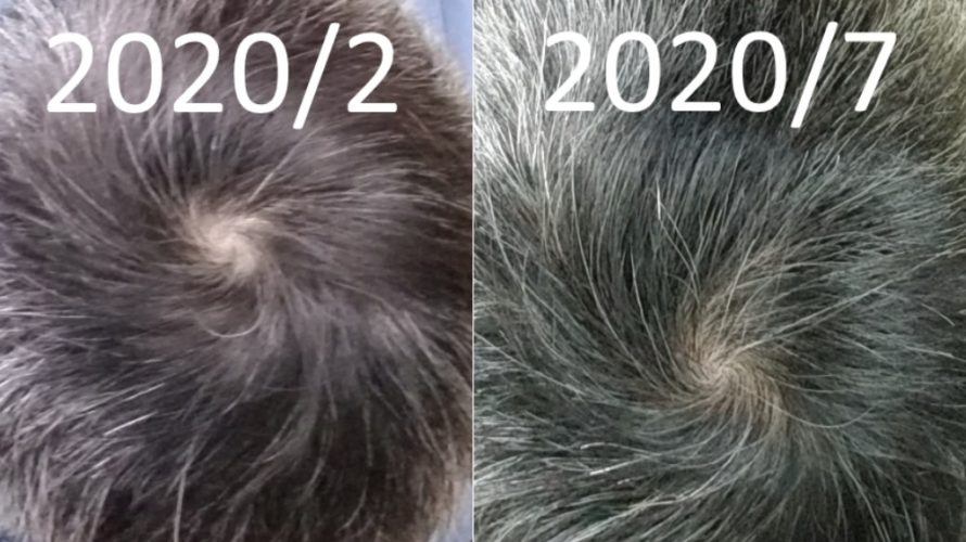 【901日目】髪は生えないがハゲは止まる!5か月前の俺と現在を比べるぞ!【薄毛克服ブログ】