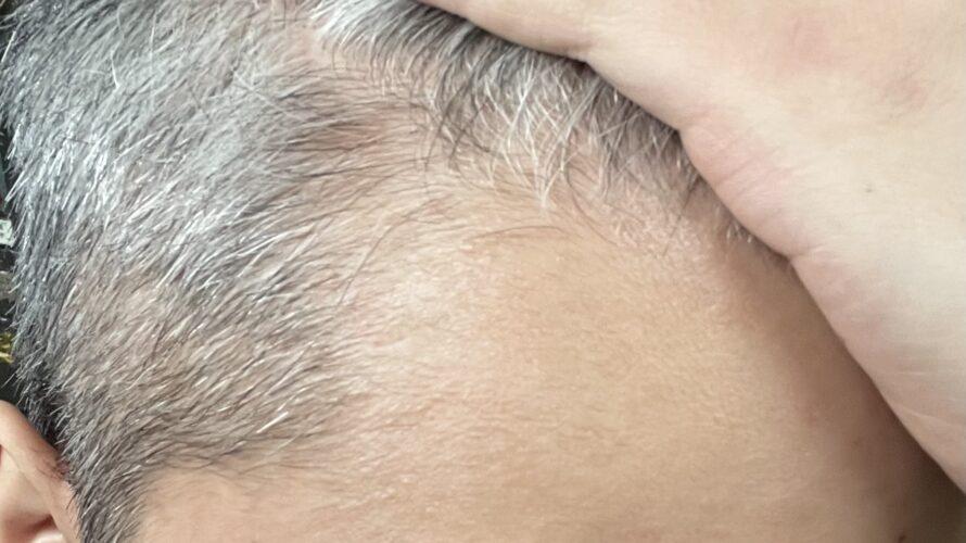 【2060日】 薄毛治療終了のお知らせ。AGA治療薬をやめたらハゲていくのか?【薄毛克服ブログ】