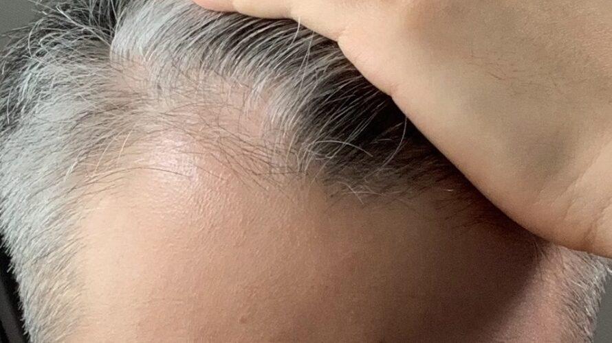 【179日目】薄毛治療薬をやめたらハゲが急速に進行したので画像で比較します【薄毛克服ブログ】